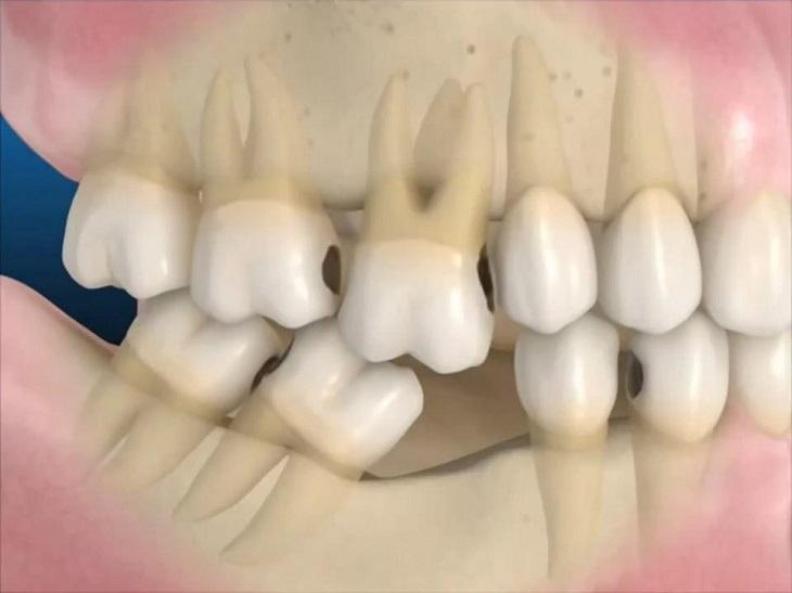 Người bệnh có thể sẽ mất răng nếu không điều trị bệnh kịp thời