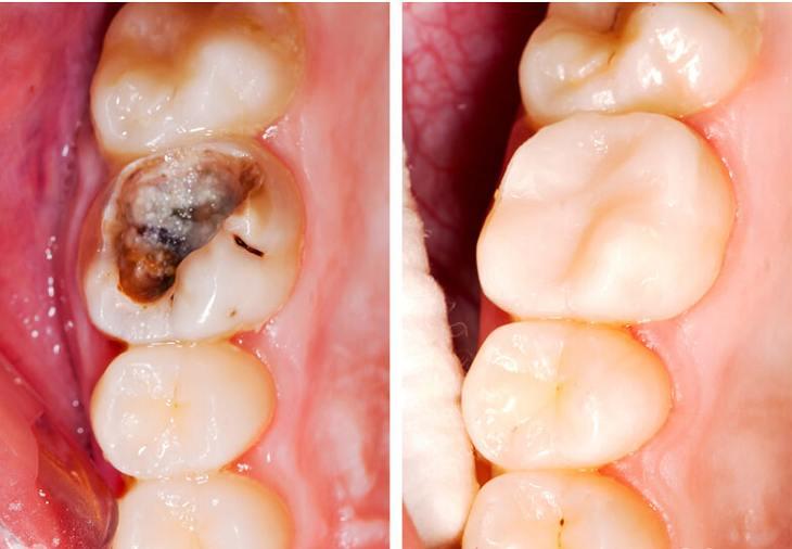 Trám răng thường được thực hiện trong trường hợp người bệnh mắc sâu răng nhẹ