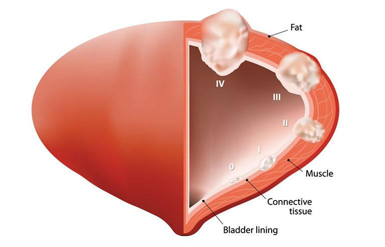 Ung thư bàng quang giai đoạn 0 sống được bao lâu