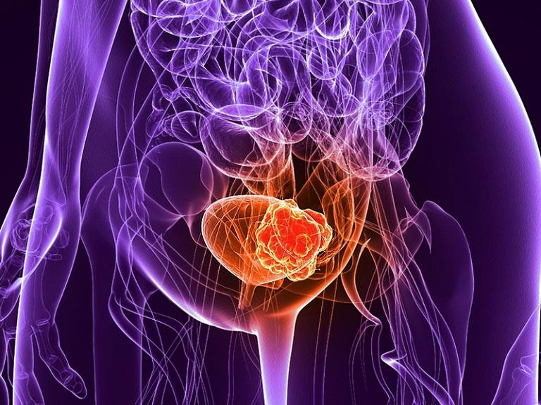 Bị ung thư bàng quang sống được bao lâu
