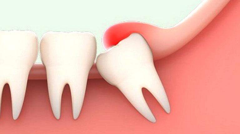 Triệu chứng viêm lợi trùm răng khôn khi mang thai