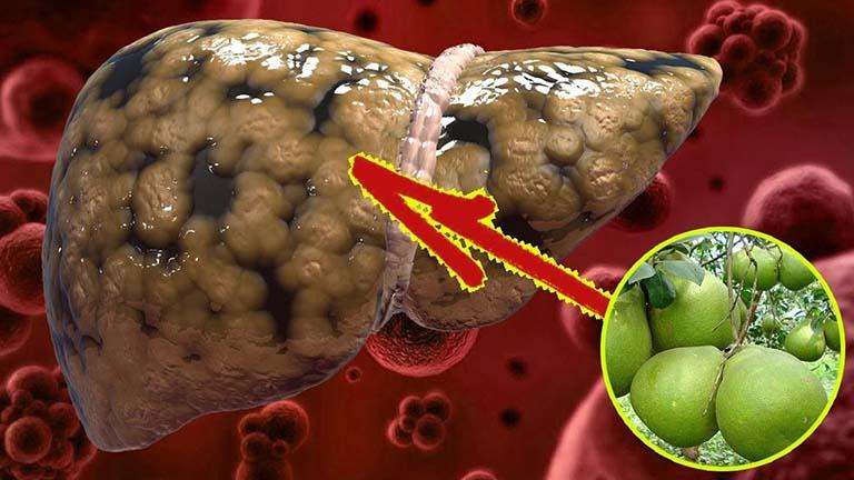 Cách trị gan nhiễm mỡ bằng vỏ bưởi