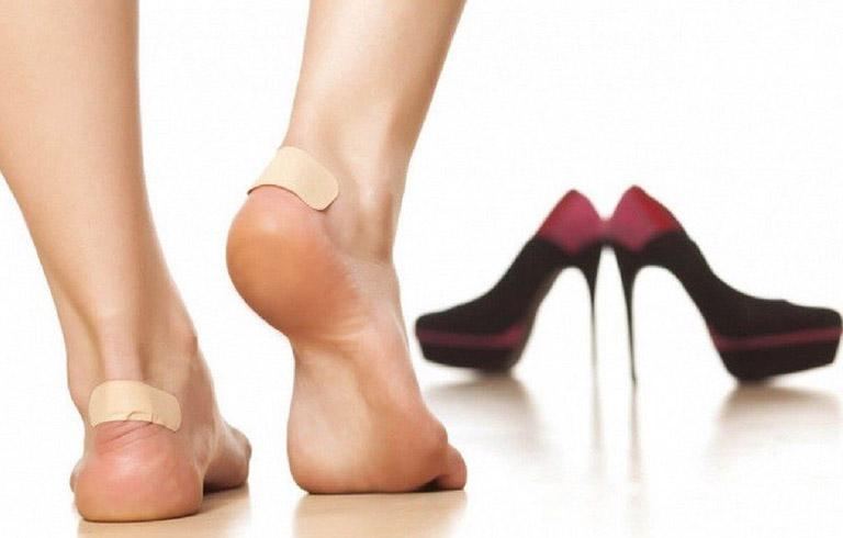 Dép cho người gai gót chân