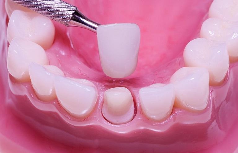 Gắn răng sứ, kết thúc quy trình