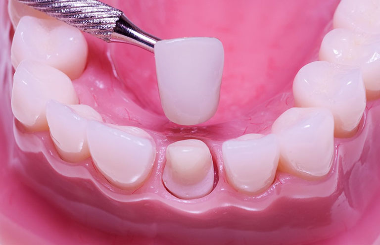 Phương pháp bọc răng sứ thường dùng cho trường hợp răng sứt mẻ, răng sâu