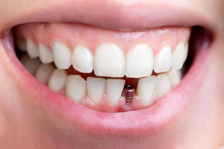 Trồng răng cửa bằng cách cấy Implant