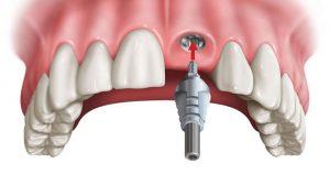 Trồng răng cửa có đau không và những lưu ý quan trọng