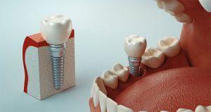 Trồng răng giả có ảnh hưởng gì không