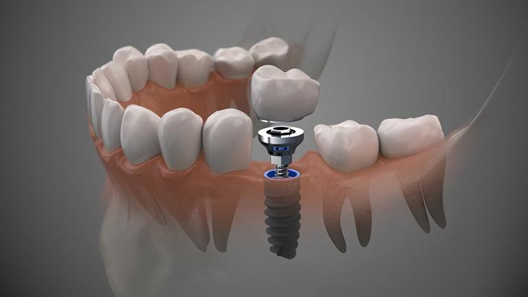 Chất liệu sử dụng làm răng giả luôn đảm bảo an toàn tuyệt đối