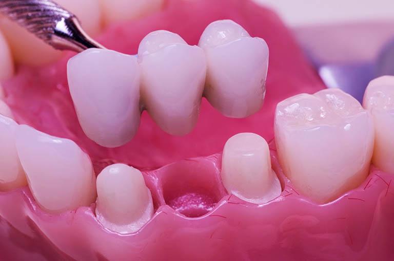 Làm cầu răng sứ gây ra cơn ê buốt khi mài răng