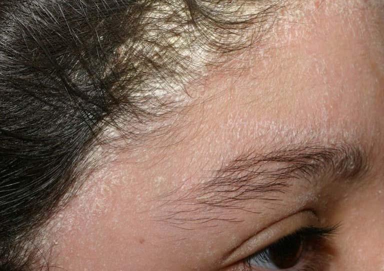 Nấm da đầu lan xuống mặt