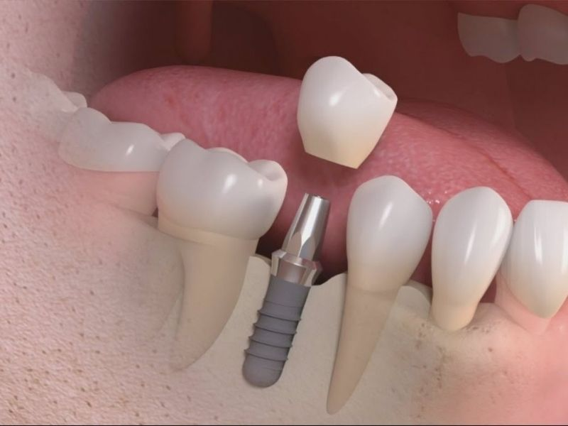 Trồng răng là dịch vụ thẩm mỹ theo yêu cầu không được hưởng BHYT