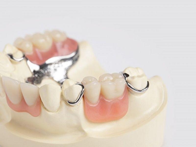 Hàm giả tháo lắp là phương pháp trồng răng hàm ít đau đớn nhất