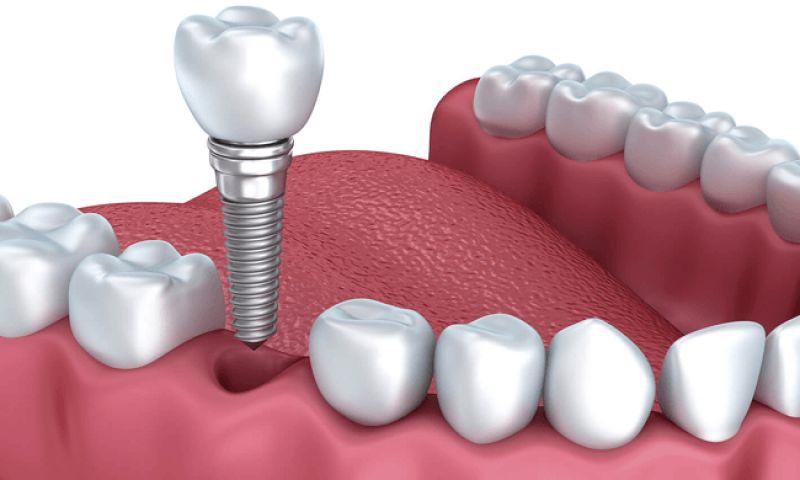 Cấy ghép Implant là phương pháp phục hình nha nha khoa tối ưu nhất hiện nay