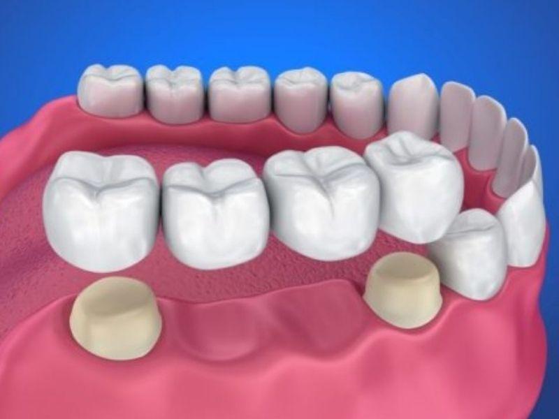 Làm cầu răng sứ sẽ gây ê buốt do phải mài răng kế cận