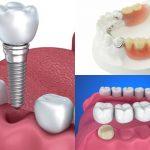 Trồng răng hàm có đau không phụ thuộc vào nhiều yếu tố