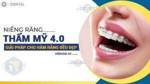 Niềng răng tại Viện nha khoa Vidental