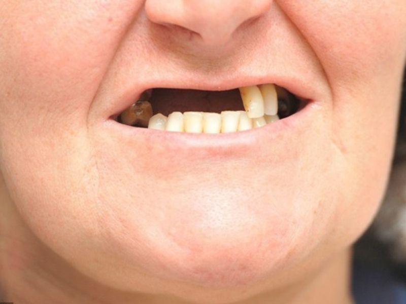 Nhổ răng không trồng lại gây nên nhiều ảnh hưởng đến sức khỏe và thẩm mỹ