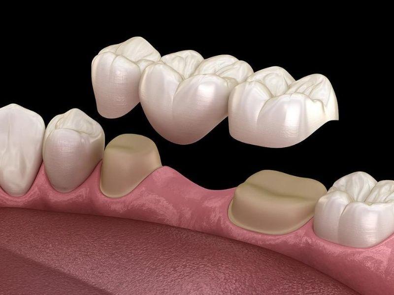 Cầu sứ gắn cố định lên răng vì thế việc vệ sinh cũng đơn giản như răng thật