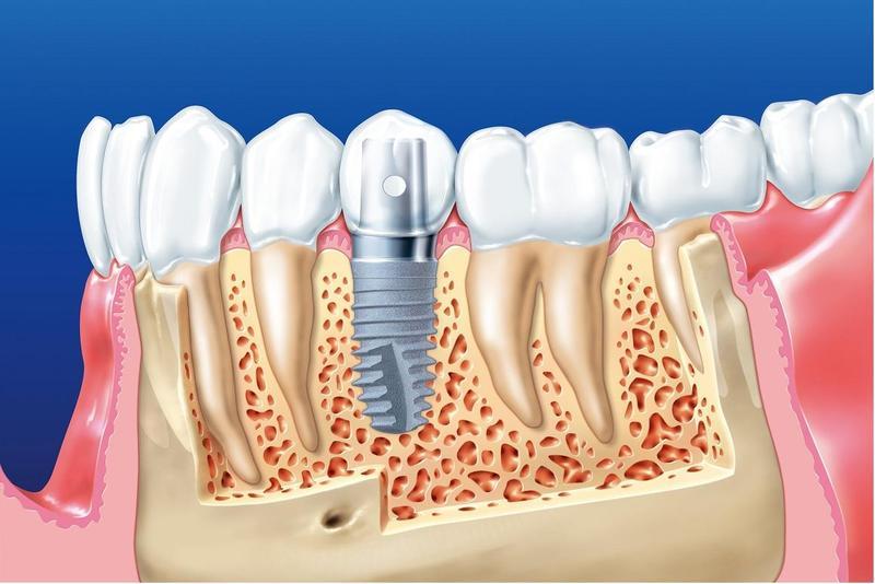 Quá trình cấy ghép Implant người bệnh có thể cảm thấy ê buốt 1 chút