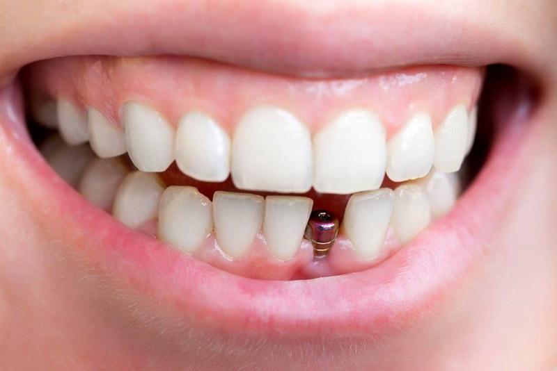 Việc trồng răng cố định không gây nguy hiểm đến sức khỏe