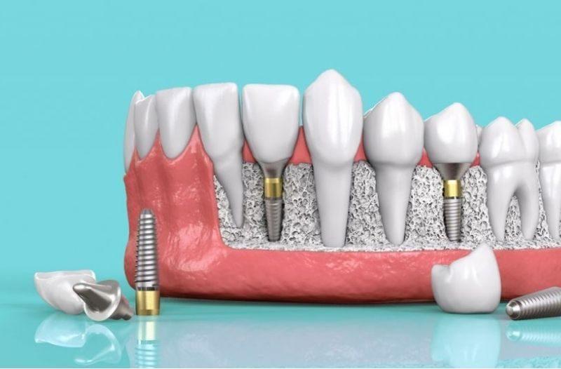 Số lượng răng cần trồng mới sẽ quyết định mức độ đau