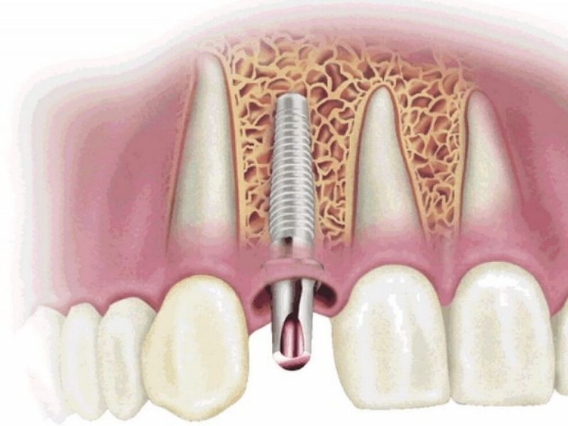 Trồng răng Implant không đúng kỹ thuật gây ra nhiều biến chứng