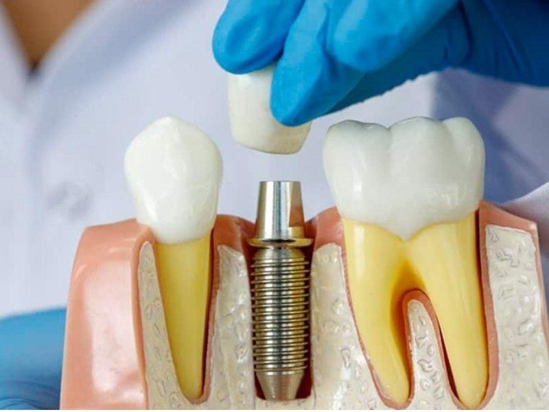 Trồng răng implant có nguy hiểm không? Kỹ thuật này không gây hại sức khỏe